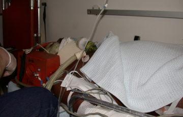 Patient im RTW welcher Beatmet wird